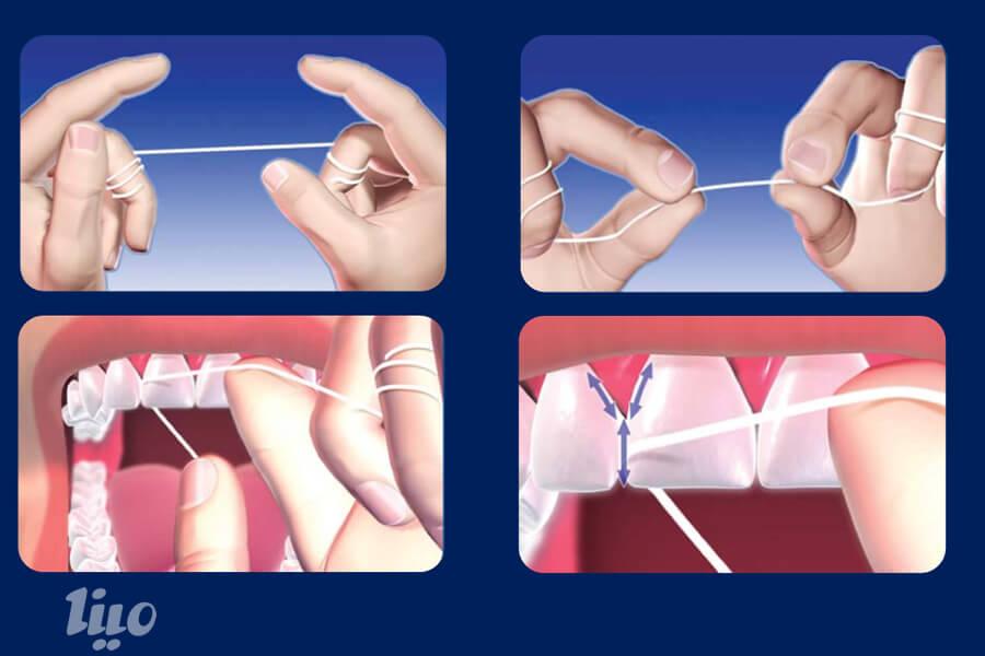 چگونه نخ دندان بکشیم؟