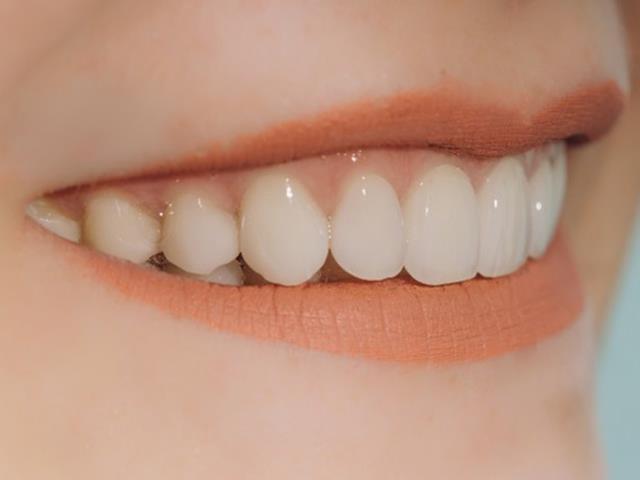زیبا سازی دندان با لمینت دندان | شرکت ستاره گنبد مینا