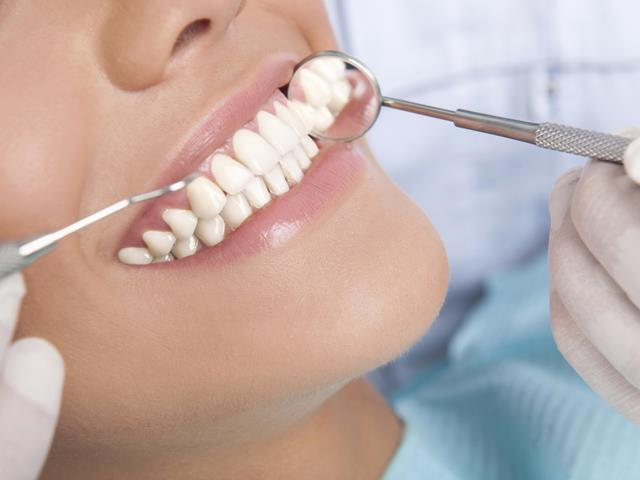 زیباسازی دندان | لمینت دندان | شرکت ستاره گنبد مینا