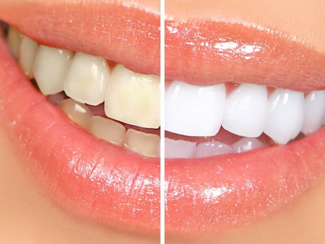پیشگیری از پوسیدگی دندان با انجام جرم گیری | شرکت ستاره گنبد مینا