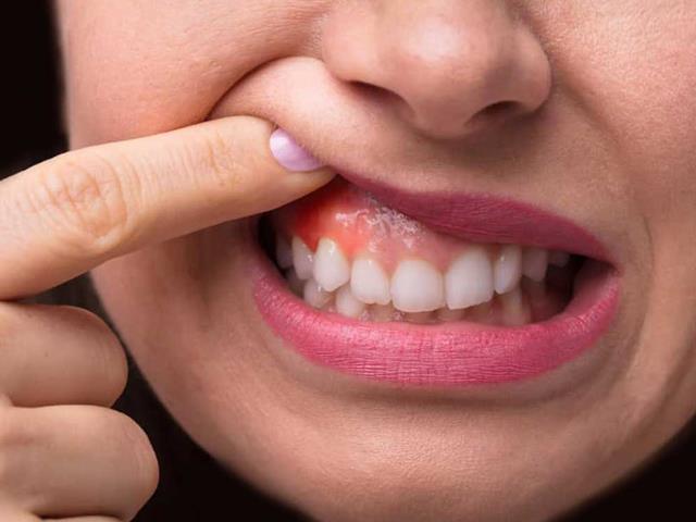 آبسه و عفونت دندان و لثه | بیماری دهان و دندان | شرکت ستاره گنبد مینا