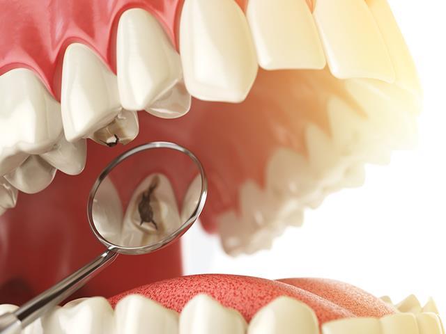 پوسیدگی دندان | شرکت ستاره گنبد مینا