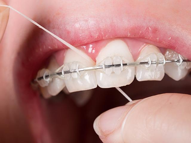 تخ دندان و ارتودنسی | نخ دندان مینا