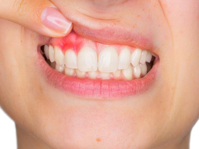 آبسه دندان | بیماری دهان و دندان | شرکت ستاره گنبد مینا