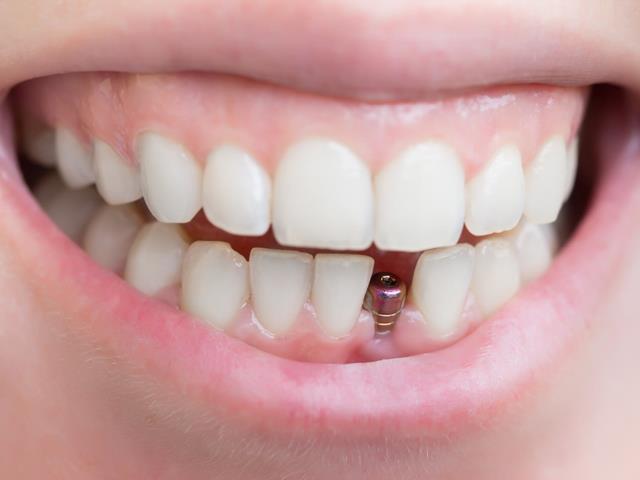 ایمپلنت دندان | شرکت ستاره گنبد مینا