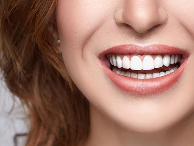 لبخند زیبا با دندان های سفید و مرتب | نخ دندان مینا