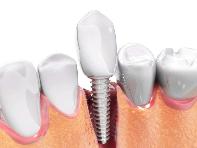 کاشت دندان با ایمپلنت | شرکت ستاره گنبد مینا