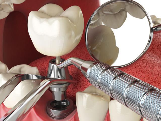 کاشت و ایمپلنت دندان | شرکت ستاره گنبد مینا