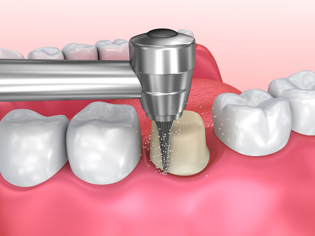 جرم گیری دندان | نخ دندان مینا