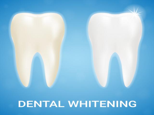 تمیز شدن سطح و سفیدی دندان به کمک جرم گیری | نخ دندان مینا