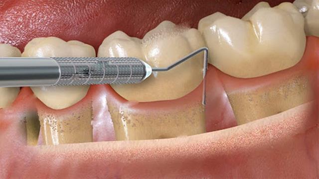 درمان بیماری لثه تیره با انجام جراحی | نخ دندان مینا