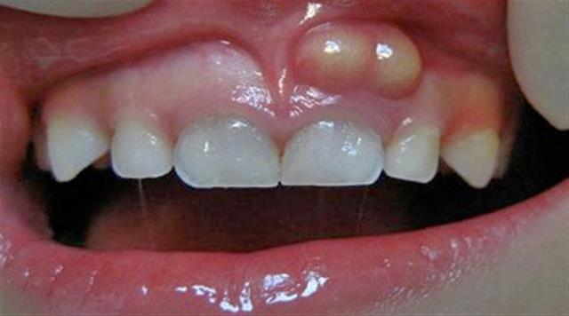 آبسه لثه | نخ دندان مینا