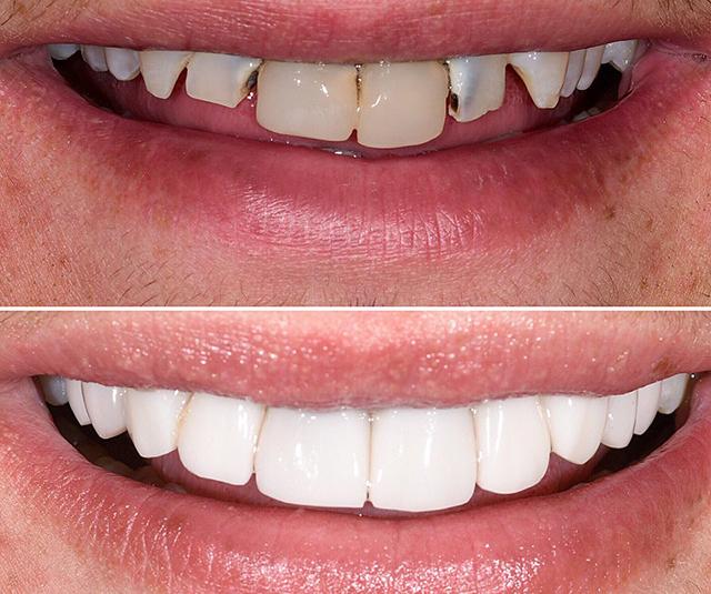 ترمیم ظاهر دندان ها با کامپوزیت | شرکت ستاره گنبد مینا