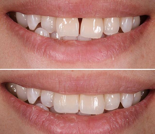 پر کردن فاصله بین دندان ها با کامپوزیت | شرکت ستاره گنبد مینا