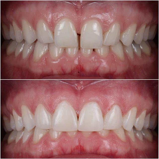 کامپوزیت دندان مناسب پر کردن فاصله بین دندان ها | شرکت ستاره گنبد مینا
