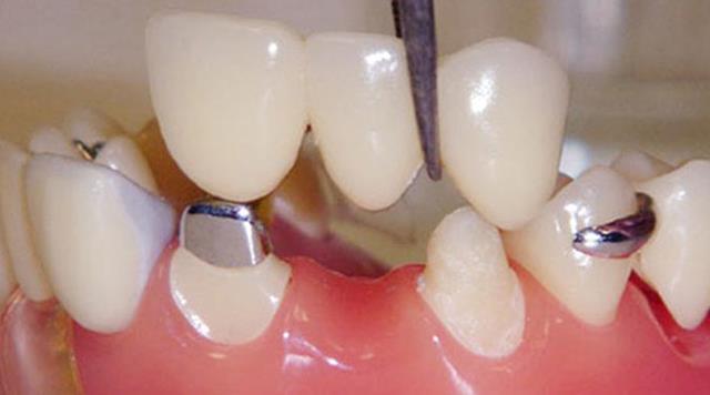 پل دندان مریلند | شرکت ستاره گنبد مینا