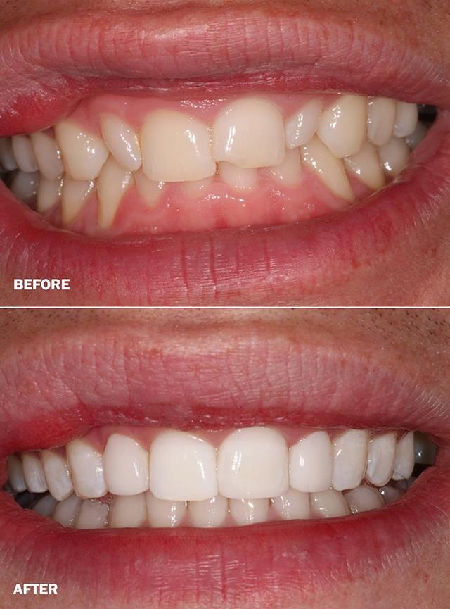 برطرف کردن شکستگی دندان با کامپوزیت | شرکت ستاره گنبد مینا