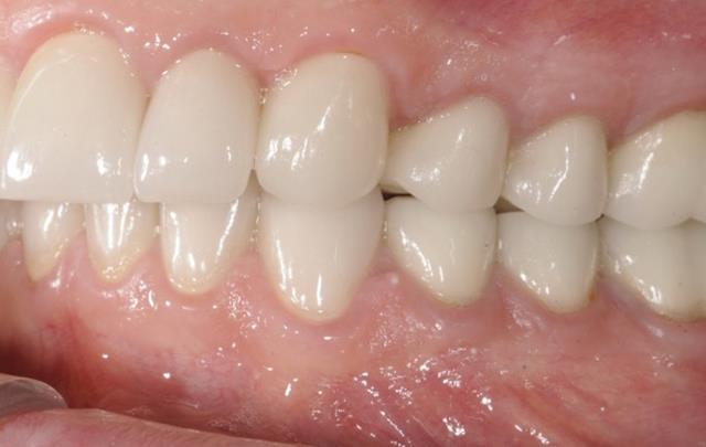 روکش های تمام سرامیک دندان | شرکت ستاره گنبد مینا