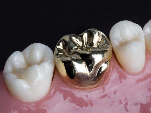 روکش تمام فلزی دندان | شرکت ستاره گنبد مینا