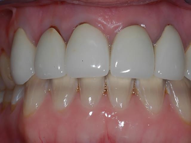 روکش های PFM دندان | شرکت ستاره گنبد مینا