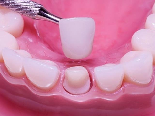 سوار کردن روکش روی دندان تراشیده شده | شرکت ستاره گنبد مینا