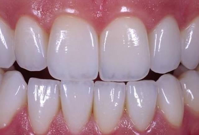 روکش زیرکونیا برای دندان | شرکت ستاره گنبد مینا