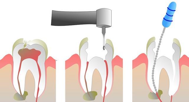 مراحل انجام عصب کشی دندان | نخ دندان مینا