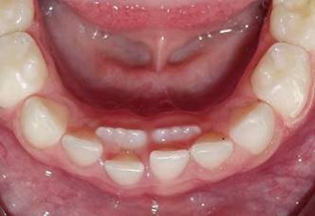 درآمدن دندان دائمی پیش از افتادن دندان شیری | نخ دندان مینا