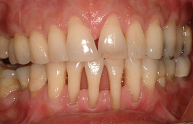 تحلیل لثه یکی از عوامل لق شدن دندان | نخ دندان مینا