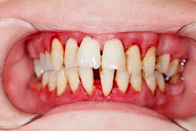 پریودنتیت شایع ترین بیماری لثه در جهان | نخ دندان مینا