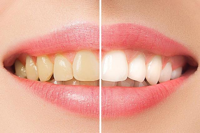 دهان شویه با مواد سفید کننده | نخ دندان مینا