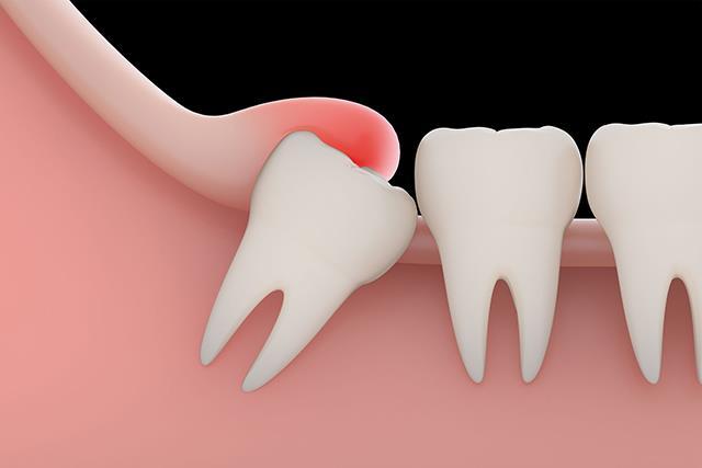 دندان عقل نهفته | شرکت ستاره گنبد مینا