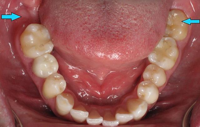 جای خالی دندان عقل در سمت چپ تصویر | شرکت ستاره گنبد مینا