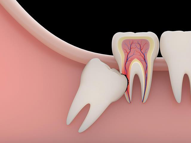 فشار دندان عقل به دندان های مجاور | شرکت ستاره گنبد مینا