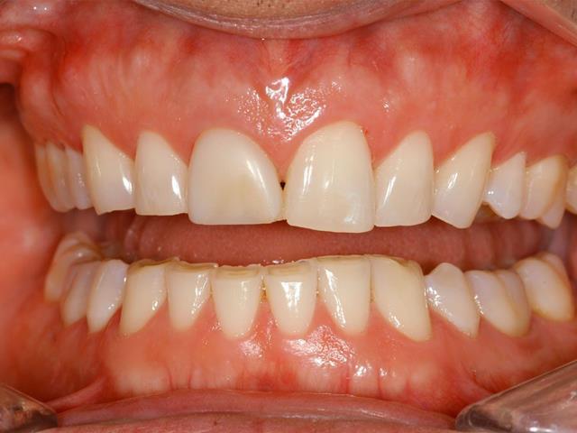 دندان قروچه با بروکسیسم | نخ دندان مینا