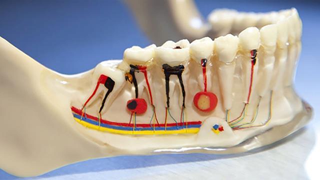 قسمت های مختلف دندان | عوامل ایجاد آبسه دندان | نخ دندان مینا