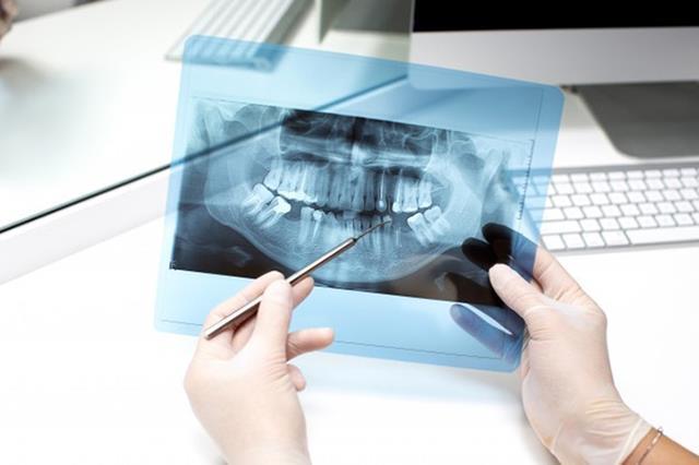 تشخیص آبسه دندان | نخ دندان مینا