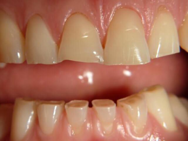 ساییدگی دندان | شرکت ستاره گنبد مینا