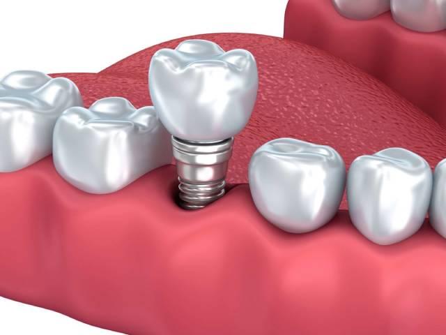 تاج ییکی از انواع پروتزهای دندان   نخ دندان مینا
