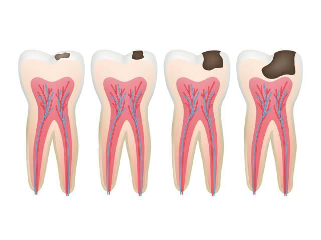 مراحل پوسیدگی دندان   نخ دندان مینا