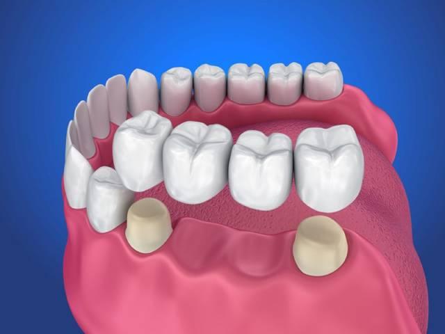 یکی از انواع پروتزهای دندان ثابت بریج یا پل   نخ دندان مینا