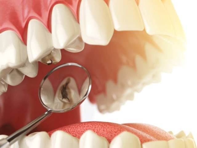 دیده شدن لکه هایی روی دندان | نخ دندان مینا