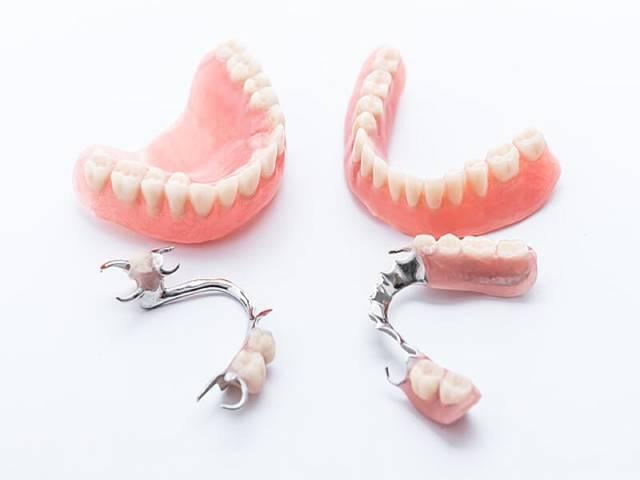 پارسیل یکی از انواع پروتزهای دندان متحرک   نخ دندان مینا