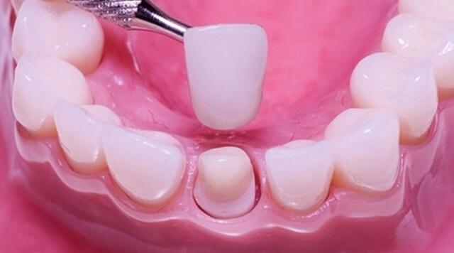 روش های دندانپزشکی ترمیمی | روکش دندان | نخ دندان مینا
