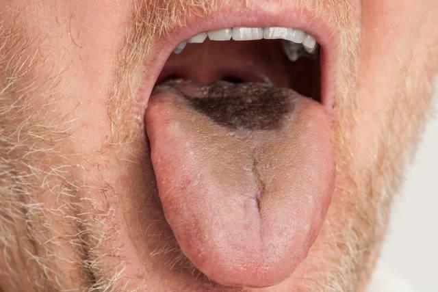 زبان در بیماری زبان سیاه مودار ، تغییر رنگ و حالت مودار پیدا می کند | نخ دندان مینا