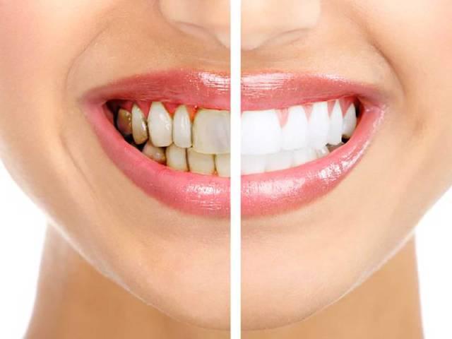 بیماری آماس لثه | نخ دندان مینا