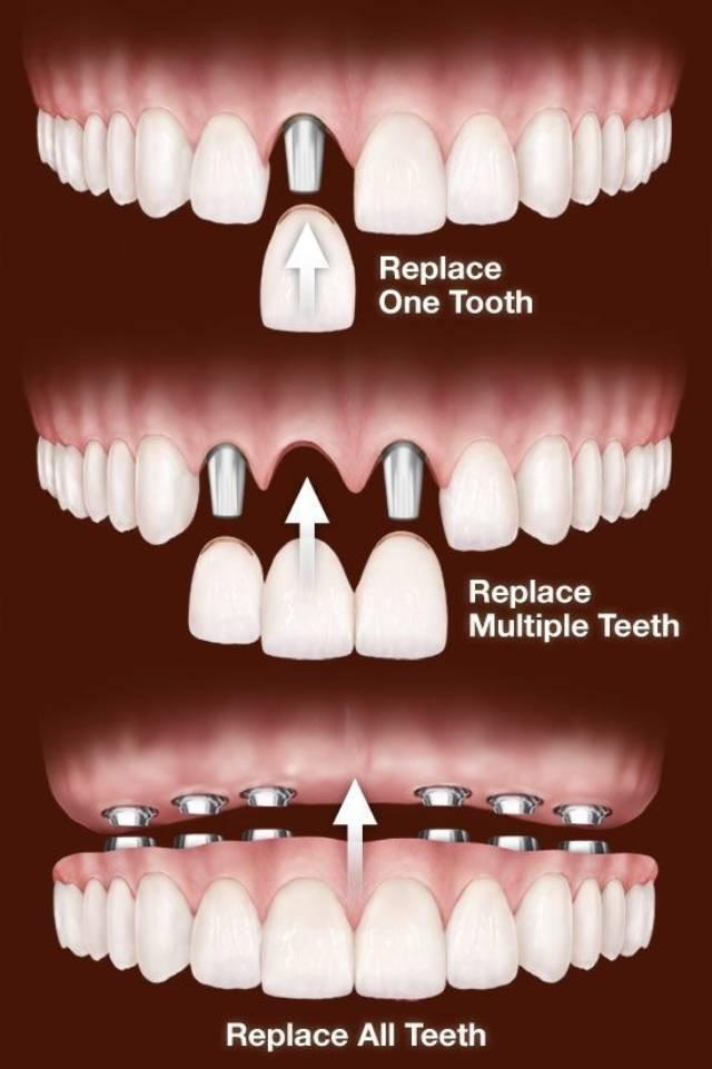 مراحل کاشت دندان | نخ دندان مینا