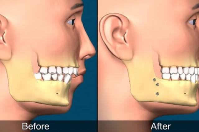 جراحی فک در زیبایی لبخند موثر است | نخ دندان مینا