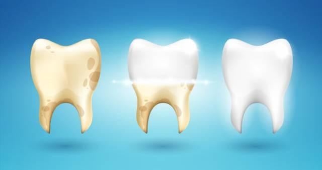 پلاک دندان | نخ دندان مینا