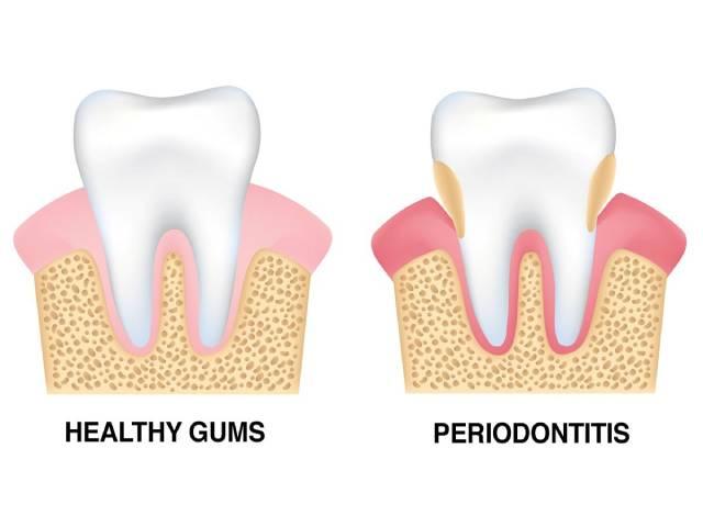 جراحی کاهش پاکت های پریودنتال | نخ دندان مینا
